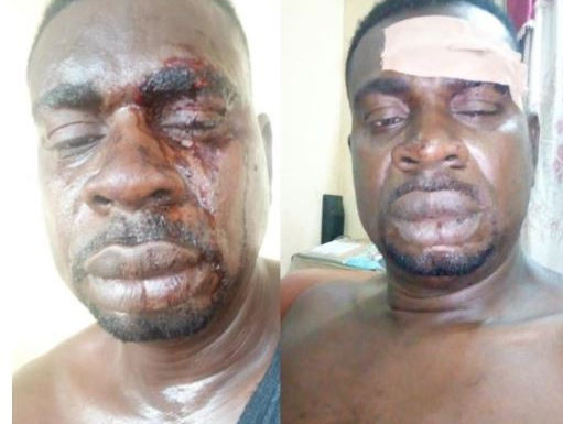 Drama As Nigeria Army Brutalized Baba Fryo (Photos)